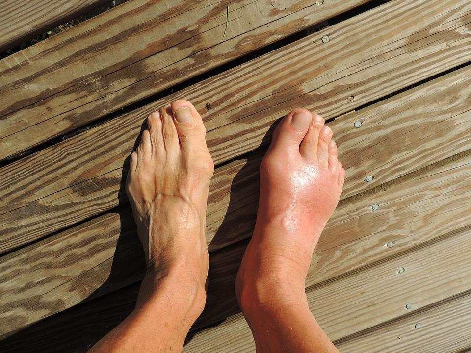 Bedagadt láb